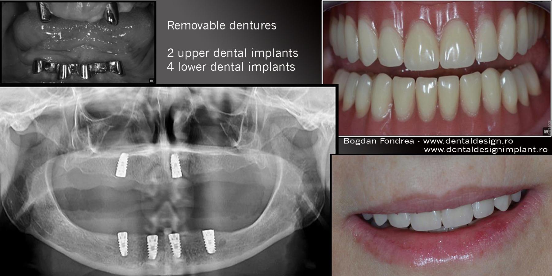 Clinica Dental Design Timisoara - pret implanturi dentare