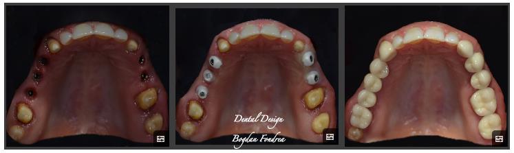 Lucrarea Dental Design - implanturi, coroane individuale, zirconiu