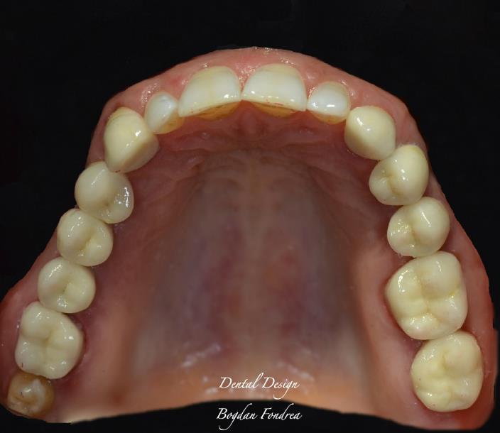 Lucrare Dental Design - implanturi, coroane individuale, zirconiu