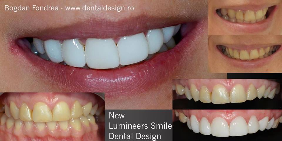 Smile makeover cu fatete ceramice Lumineers