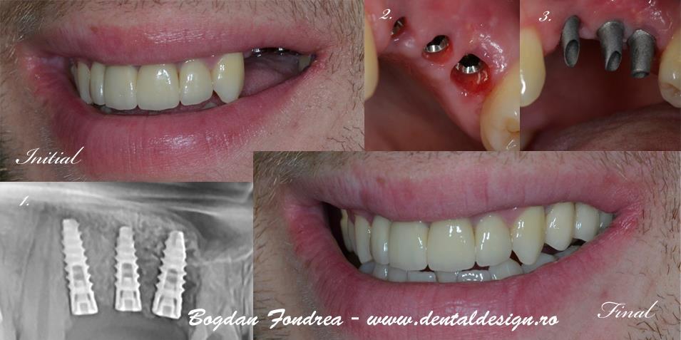 Implanturi sinus lift, sinus lift , implanturi dentare, implanturi daca nu e os