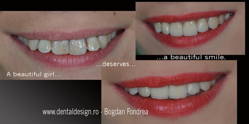 ceramica integrala, estetica dentara