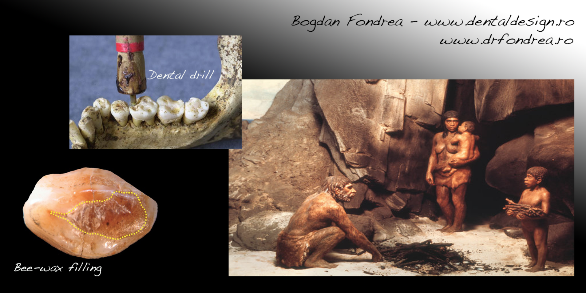 stone age dentistry