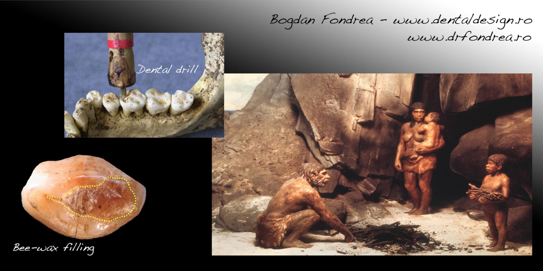 stone age dentistry