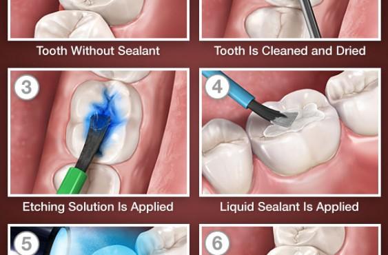 Dr bogdan fondrea implanturi dentare timisoara