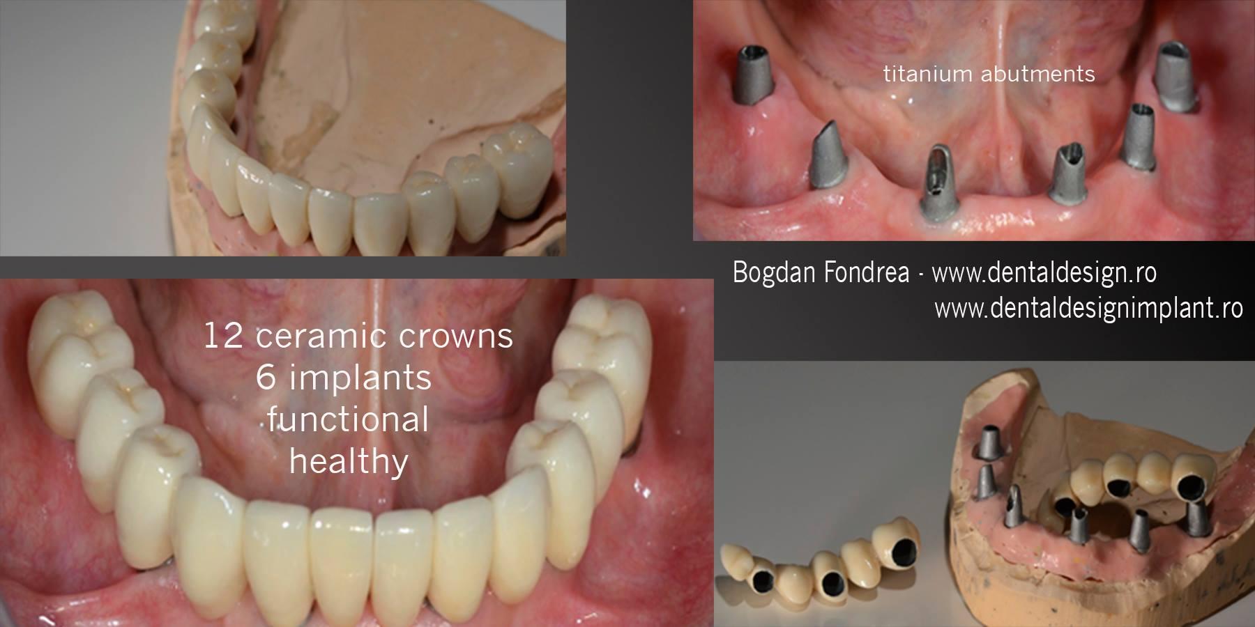 all on six implanturi dinti timisoara