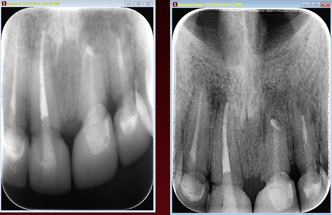 radiografie dinti