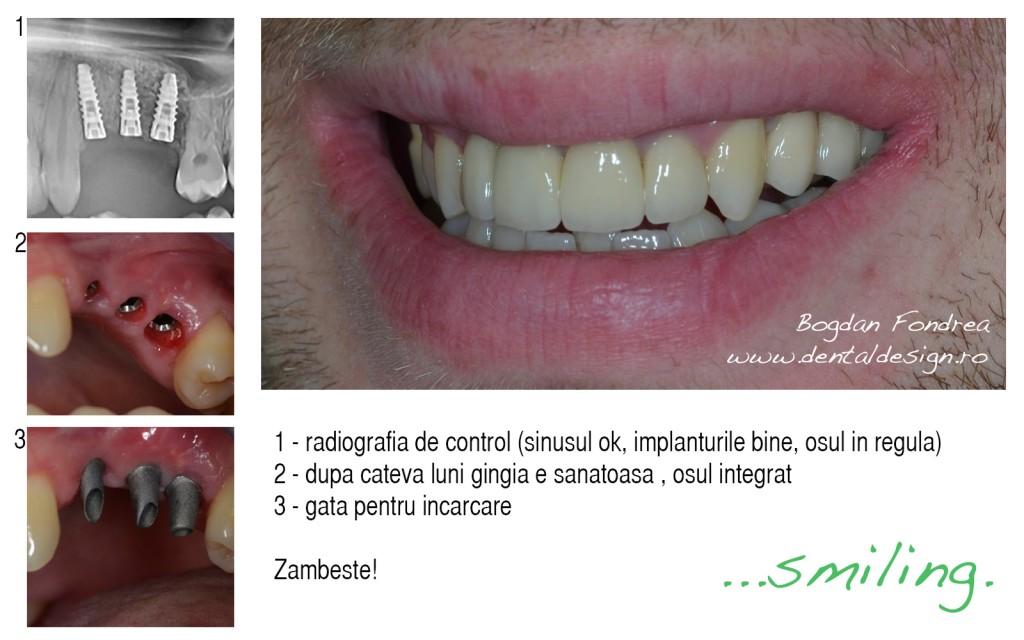 implanturi dinti