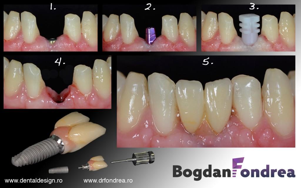 implant dentar fondrea