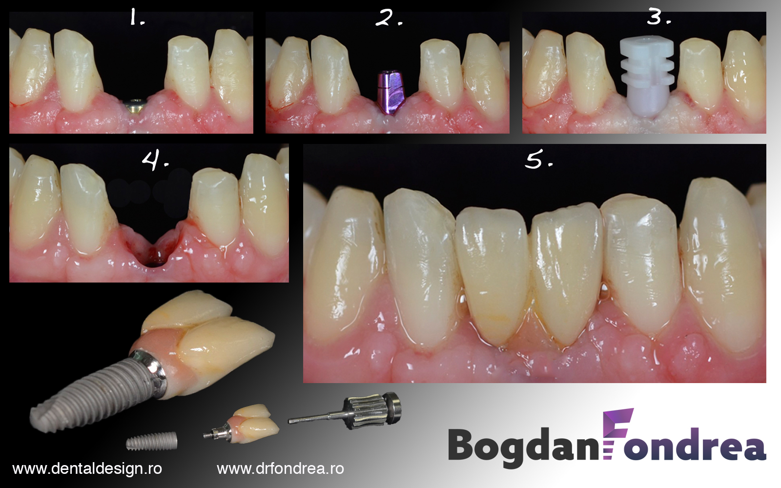 implant dentar dr fondrea