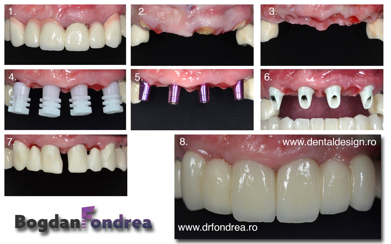 implant dinte timisoara