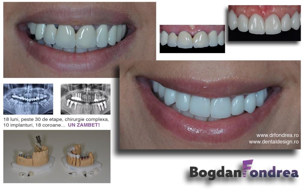 implant zirconiu ceramica