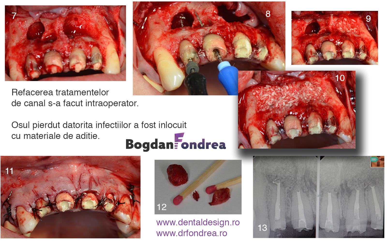 chirurgie stomatologie