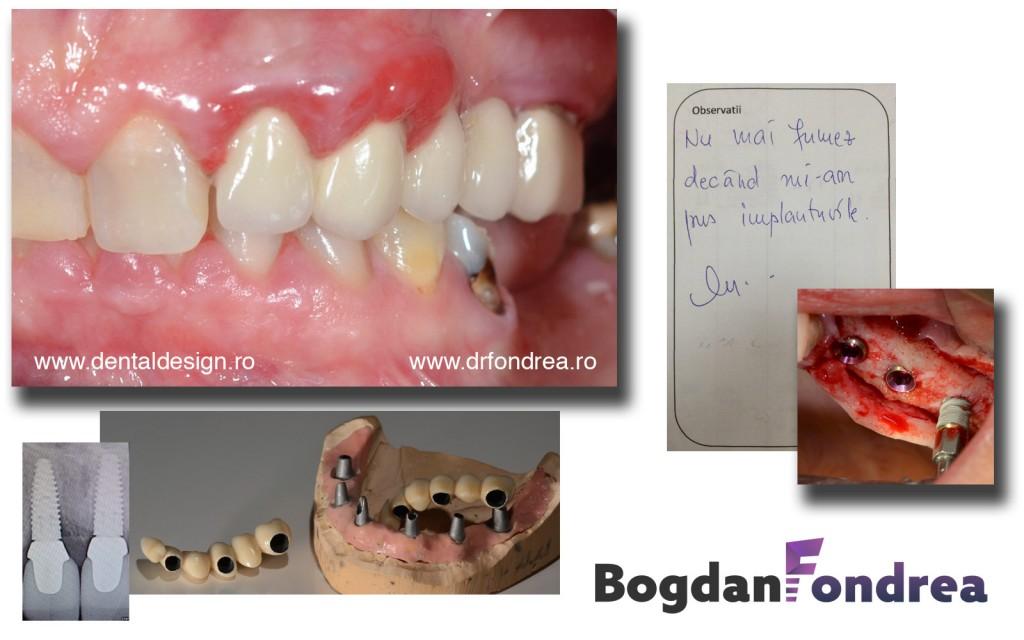 implant dinti fumat