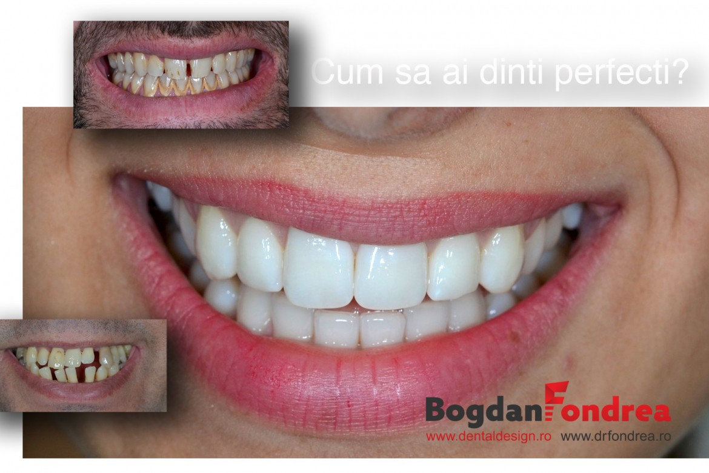 Dinti perfecti dentist timisoara bogdan fondrea