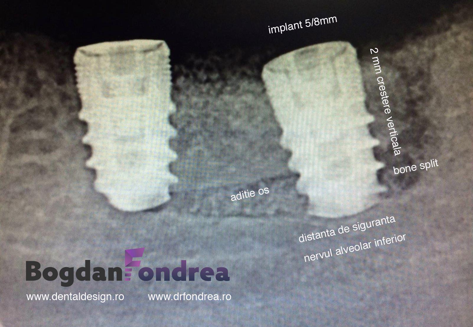 bone split implanturi bogdan fondrea