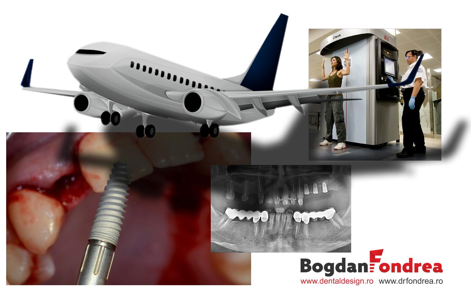 implanturi dinti aeroport alarma