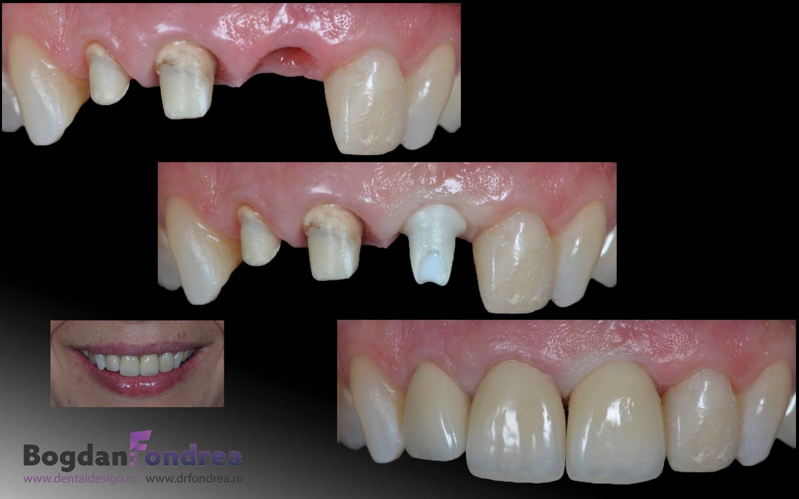 implant-dentar-dr-bogdan-fondrea