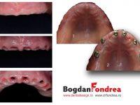 implanturi-dentare-ceramica-zirconiu-bogdan-fondrea
