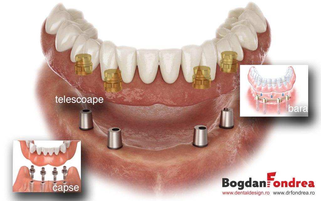 implanturi-dinti-implanturi-implantolog-bogdan-fondrea-dental-design-timisoara