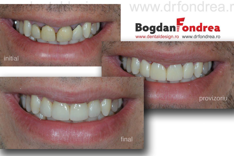 dinti ceramica dentist timisoara