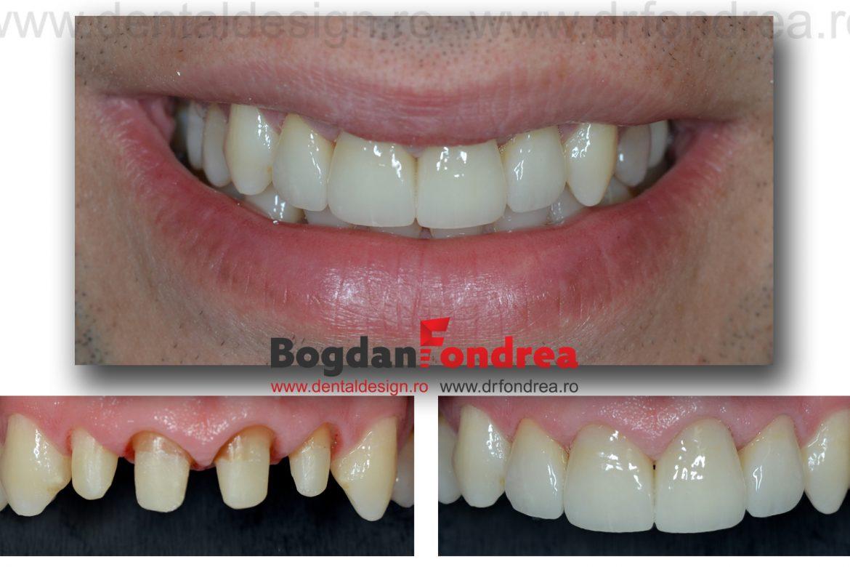 fatete dentare bogdan fondrea dentist timisoara