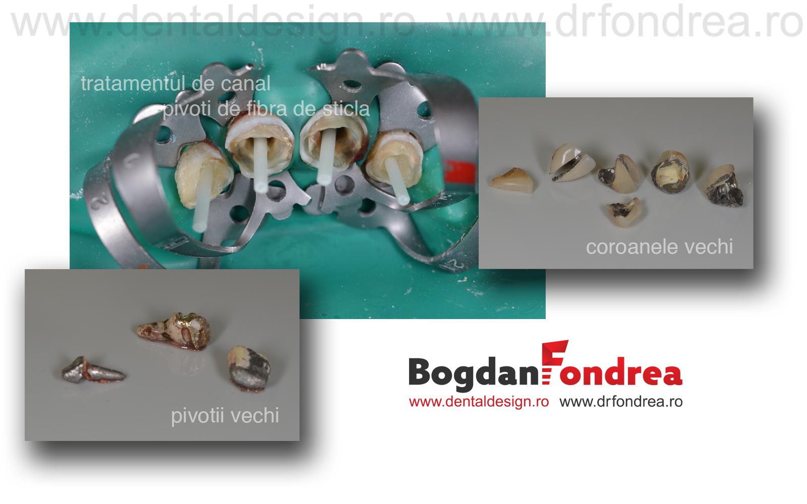 pivoti fibra de sticla endodontie