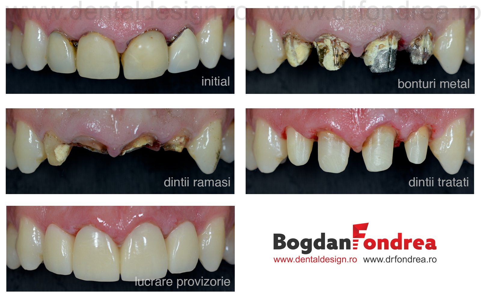 tratament canal endodontie timisoara