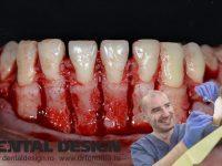 corticotomie dental design chirurg timisoara fondrea