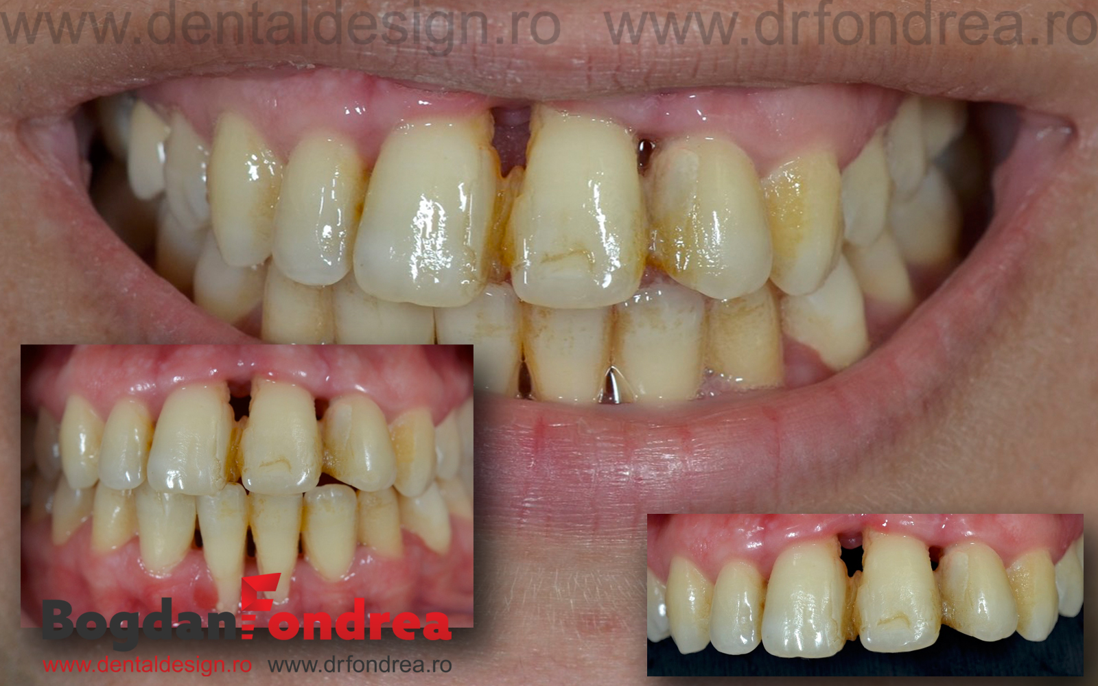 dentist timisoara fondrea