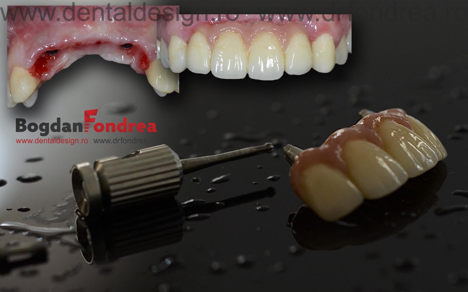 implanturi cel mai bun dentist timisoara fondrea zirconiu
