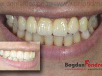 implanturi dinti fondrea timisoara clinica dentist