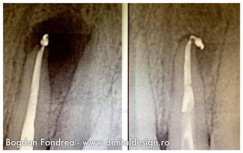 radiografie dentara