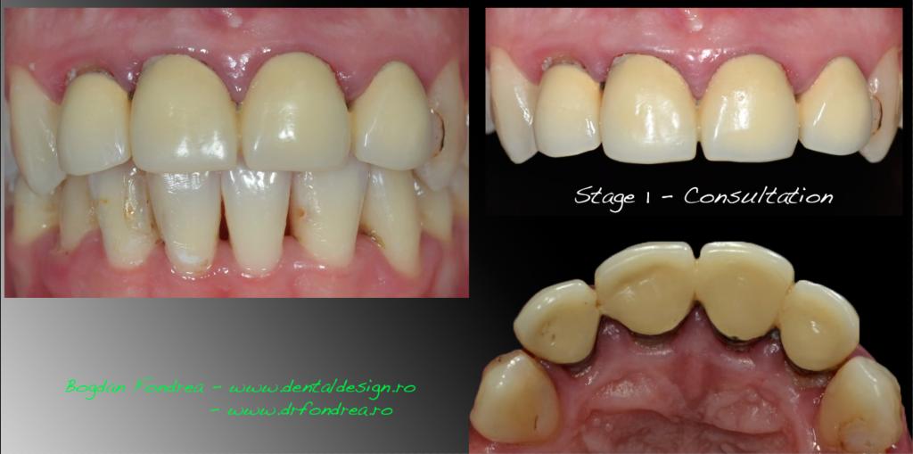 plan de tratament dentist