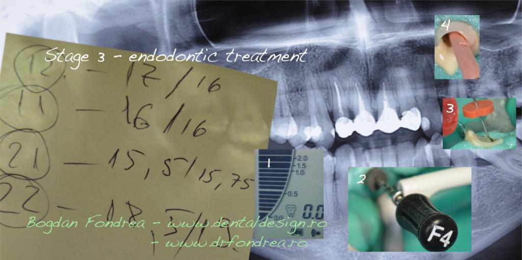 Tratament de canal, scos de nerv