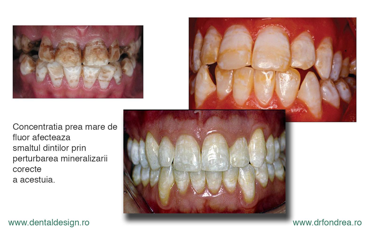 Fluoroza dentara la copii