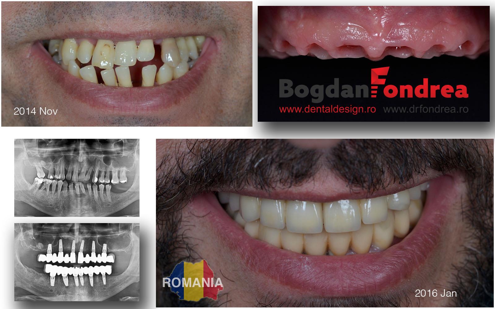 implanturi dinti timisoara bogdan fondrea