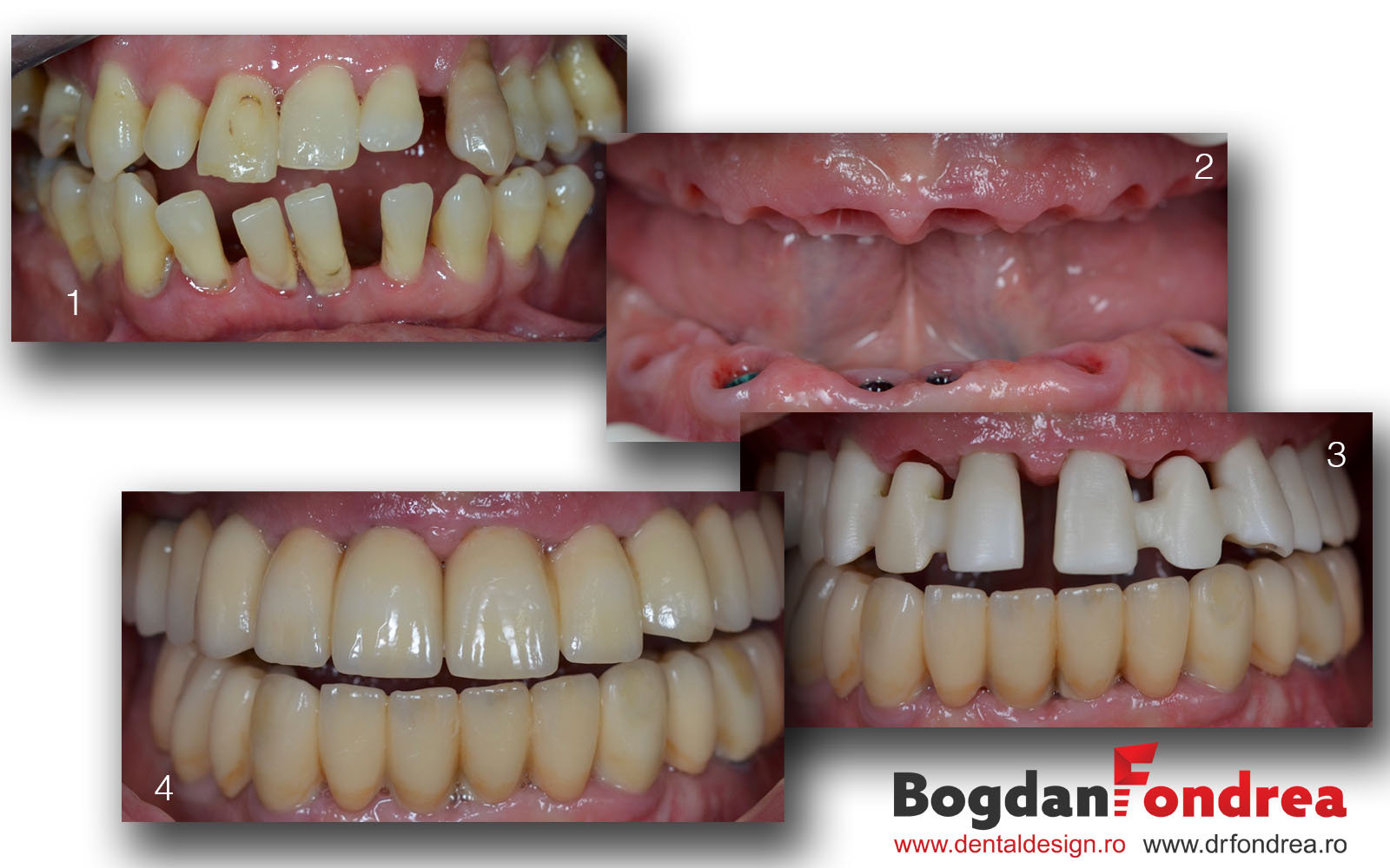 parodontoza gingie bogdan fondrea