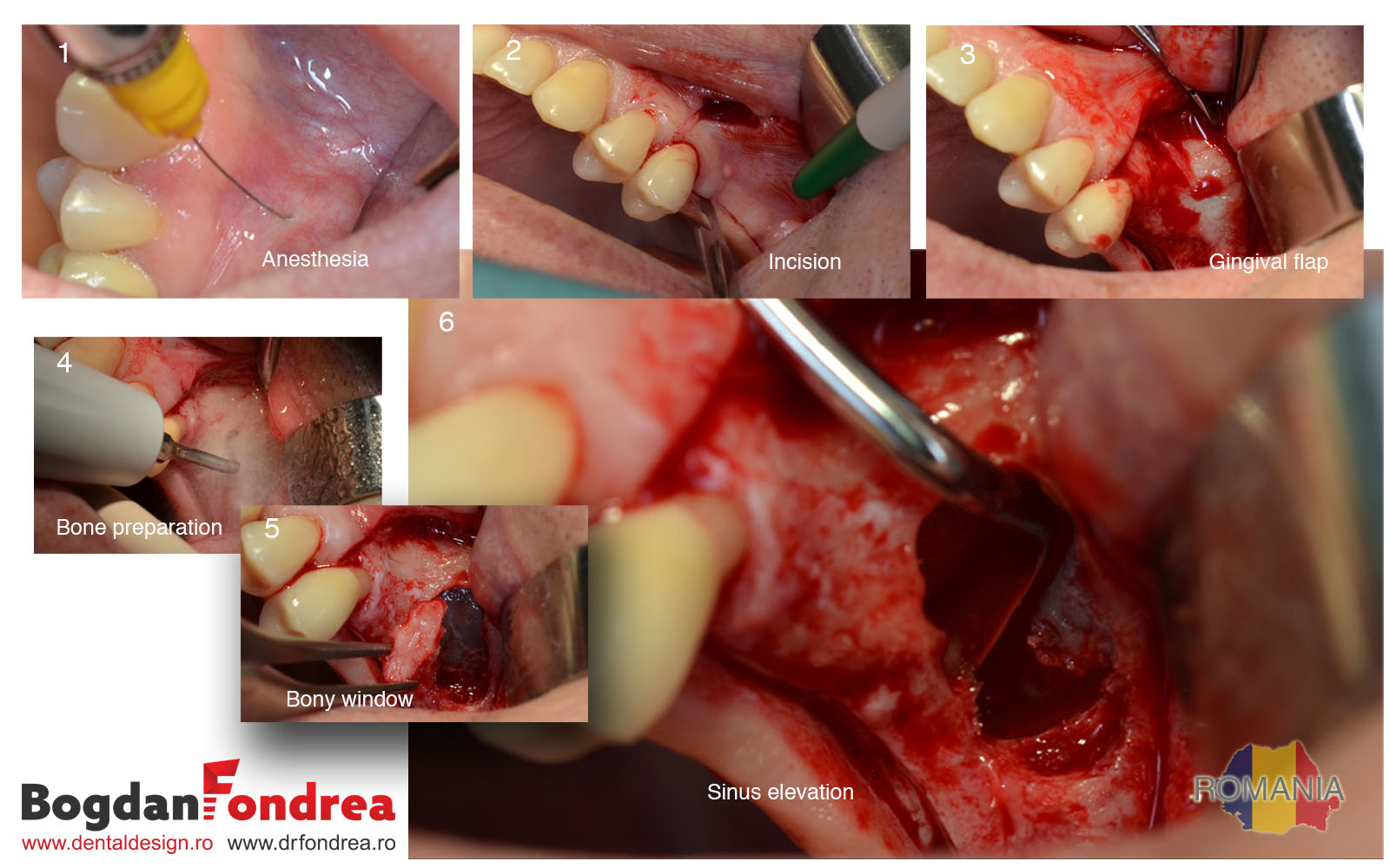 2 A PRF sinus slift Bogdan Fondrea implanturi Timisoara