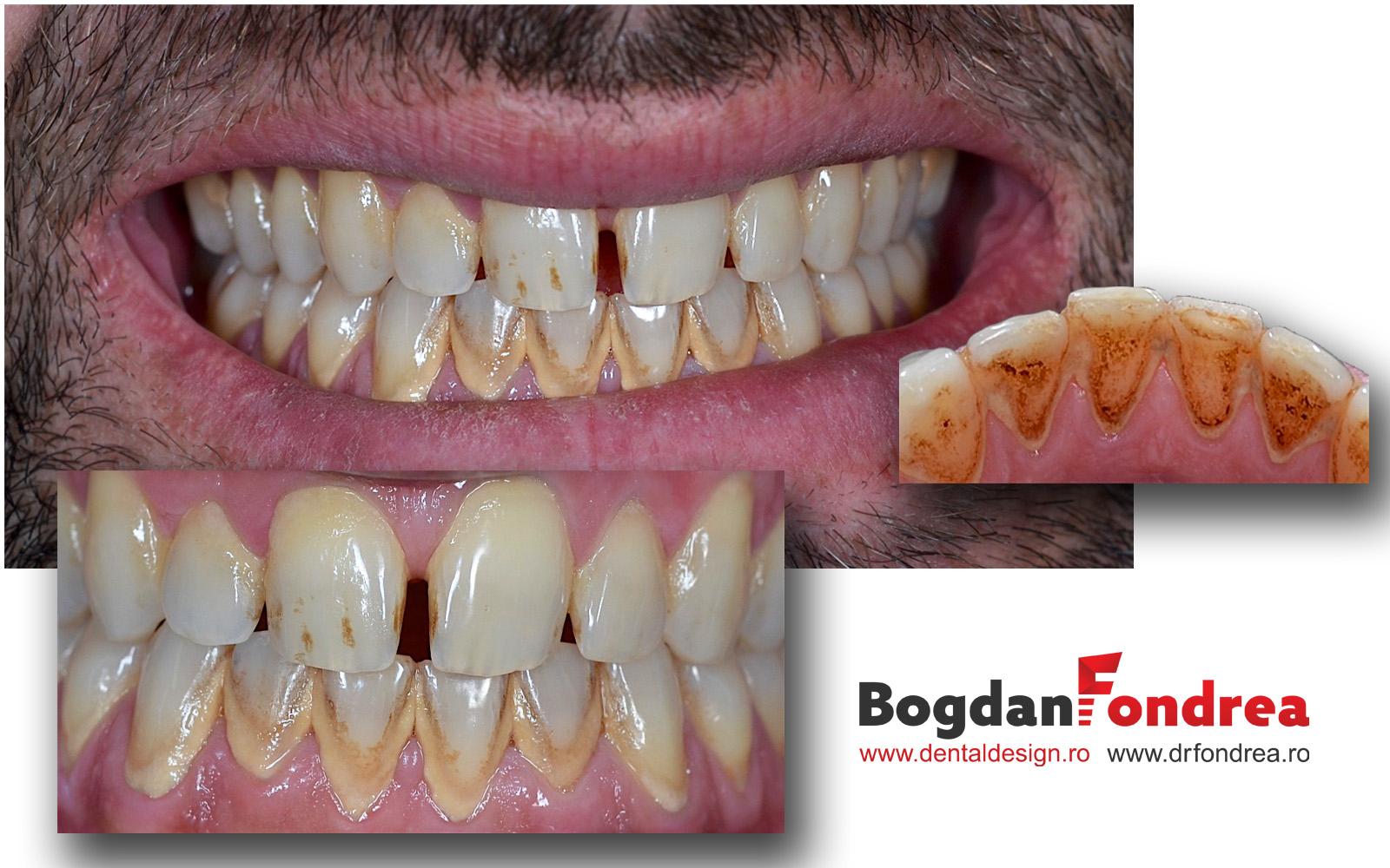 Tartru placa bacteriana dinti