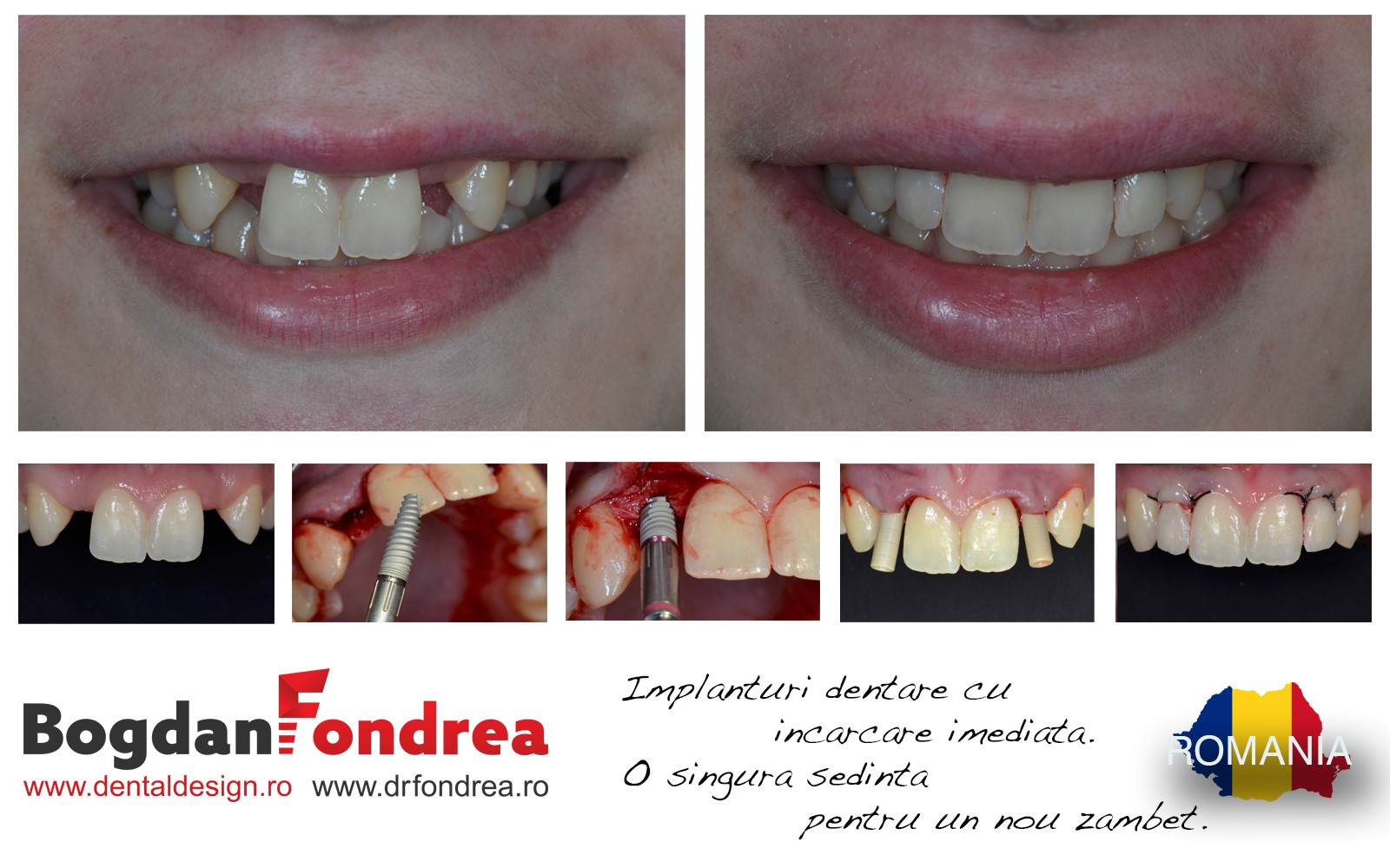 implanturi cu dinti bogdan fondrea dental design