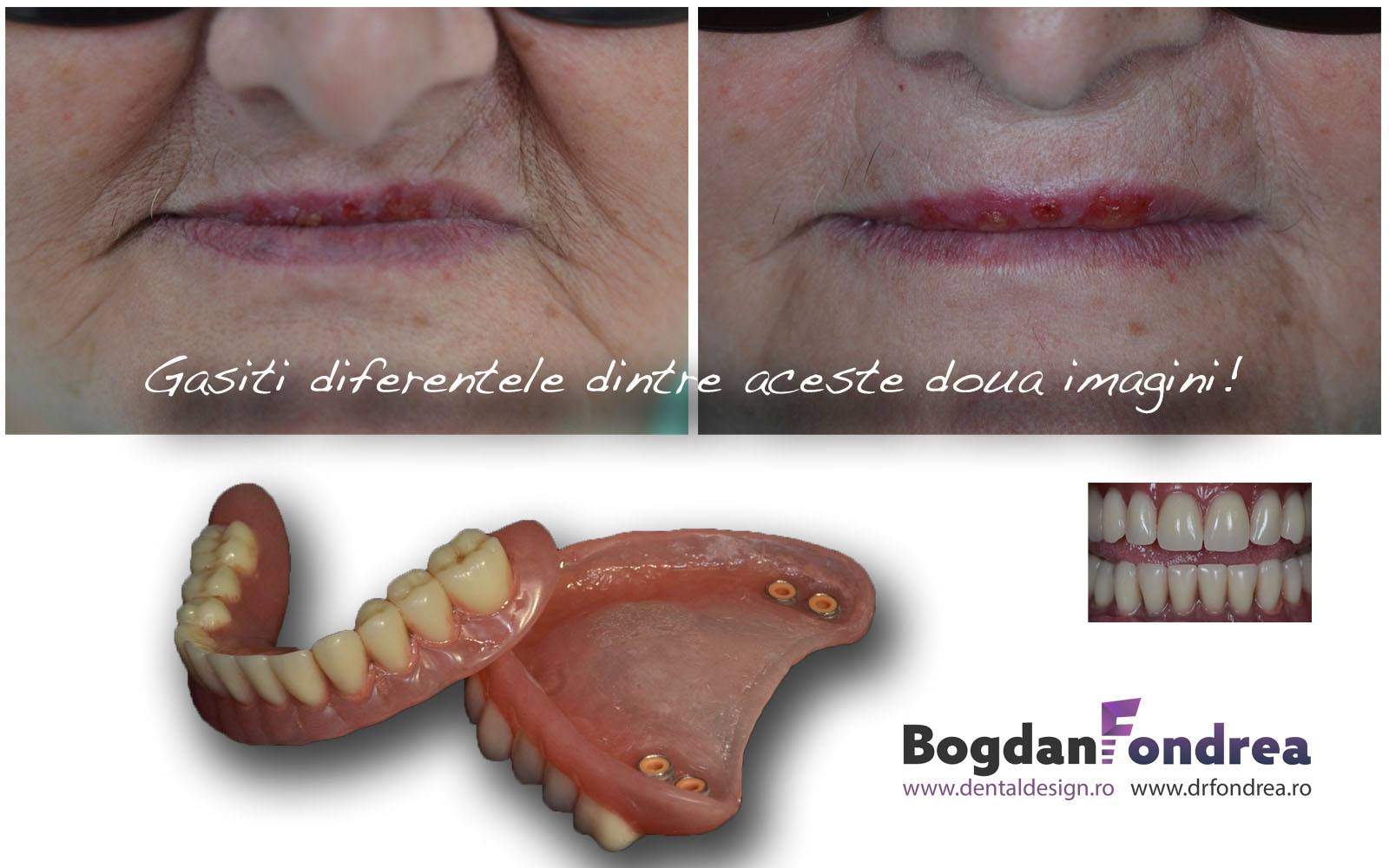 proteza-implanturi-dinti-ceramica-dentist-timisoara