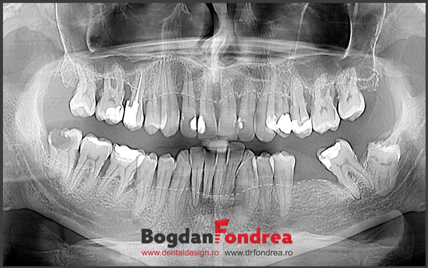 parodontala parodontoza copy 2